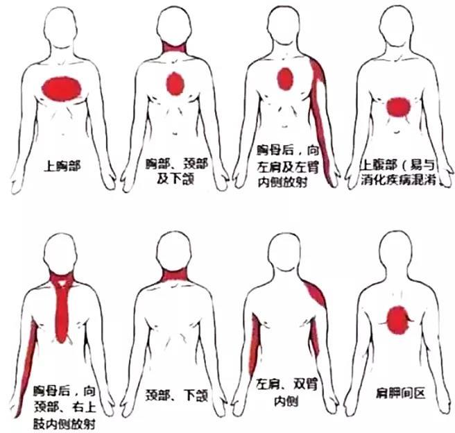 @心内科医生:胸口一阵刺痛,是心脏出问题了吗?